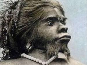 """Entierran """"mujer mono"""" luego de 150 años"""