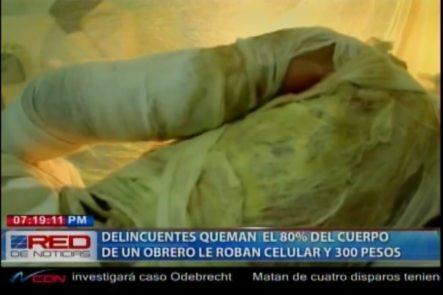 Delincuentes Queman El 80% Del Cuerpo De Un Obrero Para Robarle Un Celular Y RD300 Pesos