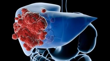 Crean un virus que podría acabar con el cáncer de hígado