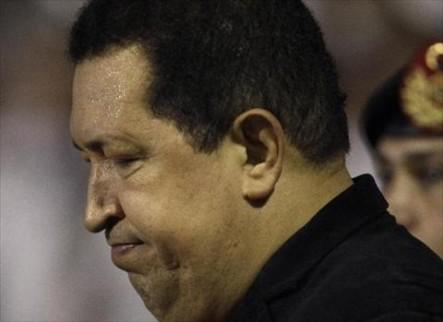 Médicos Comunican A Familia De Chávez Que éste No Se Recuperará