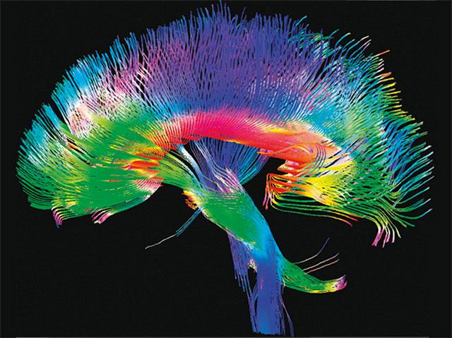 La-arquitectura-de-conexiones-del-cerebro-controla-la-actividad-neuronal
