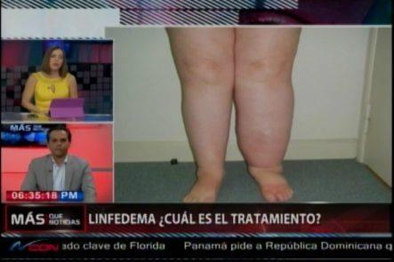 El Dr. Ivan Silva Nos Habla De El Linfedema; ¿Qué Es? ¿Cuáles Son Sus Causas