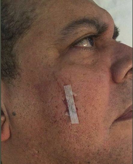 Fernando Villalona se quita la verruga