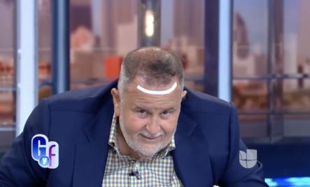Así fue la operación del Gordo Raul Molina para implantarse cabello