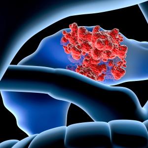 pancrea_iStock_000021762191XSmall_David-Marchal