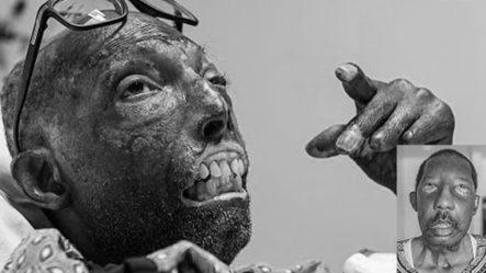 !Revivir Con El Rostro De Otro¡ La Conmovedora Historia Del Primer Transplante Facial Completo