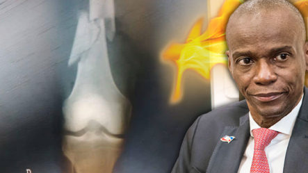 Se Filtran Fotografías Del Cuerpo Del Presidente Haitiano Que Revelan Una Fuerte Tortura
