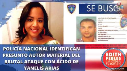 Policía Nacional Identifica Presunto Autor Material Del Brutal Ataque Con ácido De Yanelis Arias
