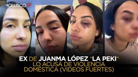 Acusa De Maltrato Al Ex Campeón De Boxeo Boricua Juanma López (DISCRECIÓN CON LAS IMÁGENES)