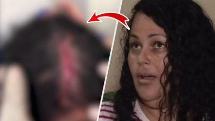 """Mujer Narra Como Cuatro De Sus Vecinos Le Partieron La Cabeza """"por Una Manguera"""""""