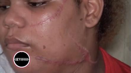 3 Mujeres Le DESFIGURAN EL ROSTRO A Otra De 15 Años Supuestamente Por Esto