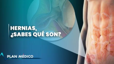 Hernias ¿sabes Qué Son? | Plan Médico
