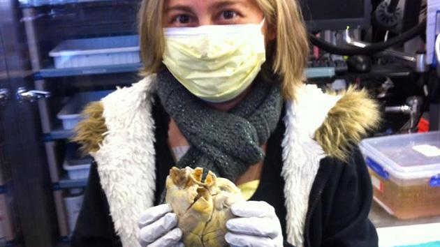 Una estadounidense posa con su 'viejo' corazón tras un trasplante Texto completo en: http://actualidad.rt.com/sociedad/view/83999-foto-estadounidense-antiguo-corazon-conmueve-red