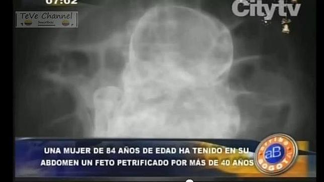 fetopretificado