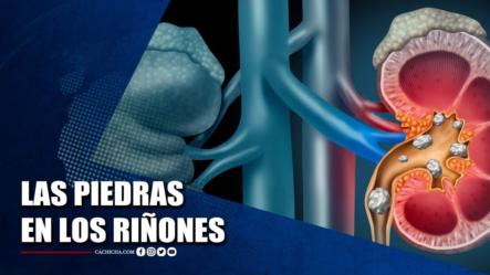 Dr. Domingo Martínez Habla Sobre Las Piedras En Los Riñones | Tu Tarde