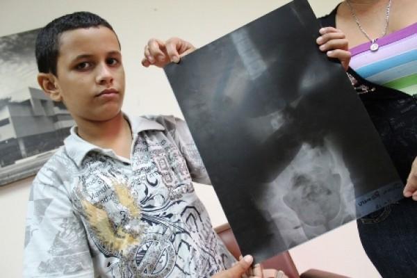 Un médico muerto en 1919 en la radiografía de un niño